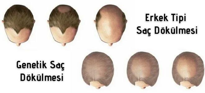 Genetik Saç Dökülmesi