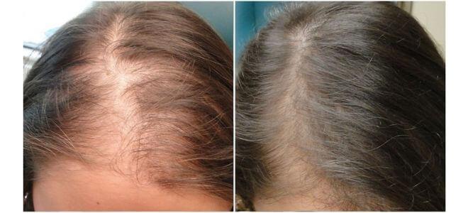 menopozda saç dökülmesi