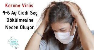 Korona Virüs 4-6 Ay Ciddi Saç Dökülmesine Neden Oluyor.